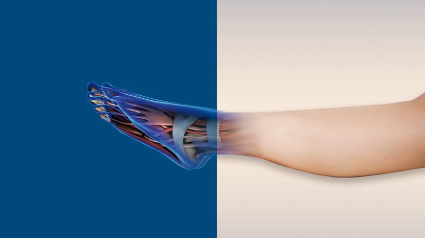 3Dexperinec y ortopedia digital