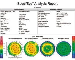 Revolución virtual en la cirugía refractiva corneal con SpecifEye y Simulia